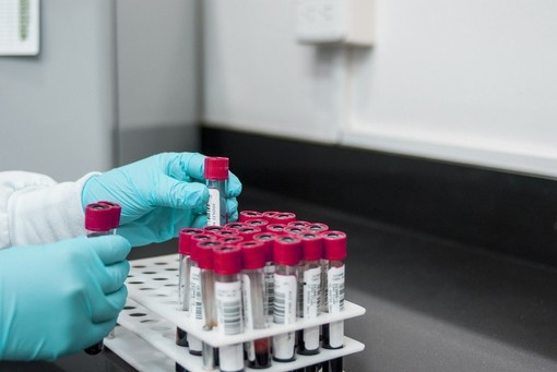Test rapidi, dal 15 gennaio conteggiati nel bollettino nazionale
